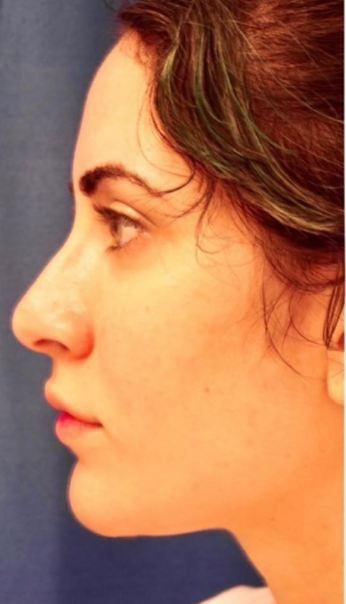 nose1a
