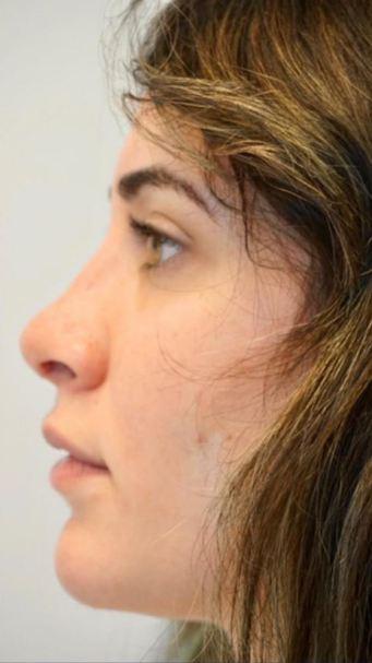 nose1b