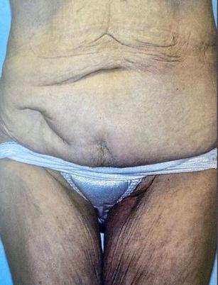 tummy-tuck-before
