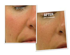 nose surgery specialist in Miami
