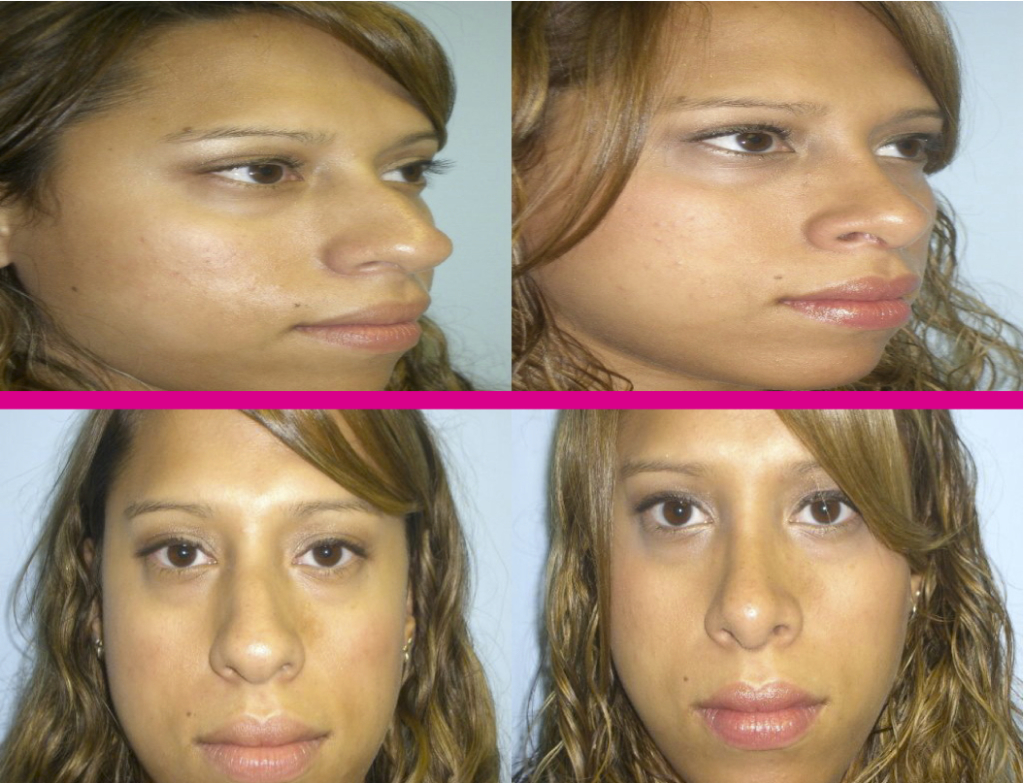 nose surgery in Miami