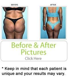 The Best Liposuction in Miami - Doctor J Salomon
