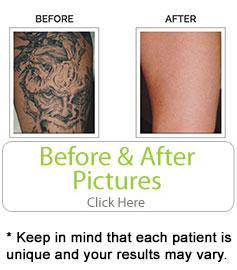 bf-tattoo2