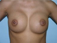 breast-augmentation-after-10