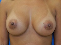 breast-augmentation-after-6
