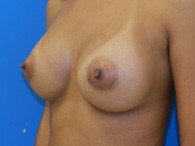 breast-augmentation-after-7