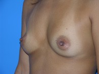 breast-augmentation-before-7