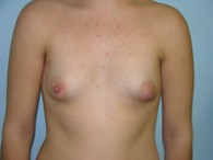 breast-augmentation-before-8