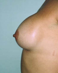 breastaug2_a