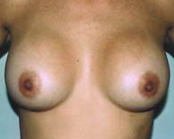 breastaug3_a