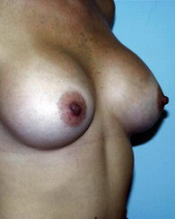 breastaug6_a