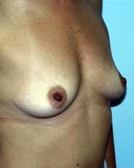 breastaug6_b