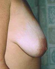 breastlift1_b