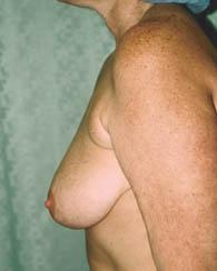 breastlift4_b