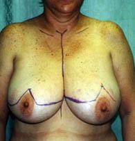 breastredb