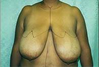 breastreduct_b_2