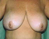 breastreduct_b_3