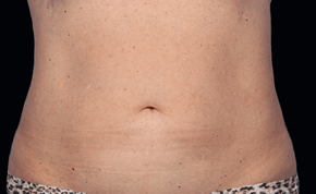 coolsculpting-miami-female-patient-2-after