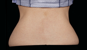 coolsculpting-miami-female-patient-back-after