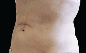 coolsculpting-miami-female-side-after