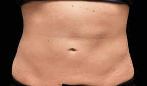 coolsculpting-miami-male-after