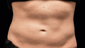 coolsculpting-miami-male-before