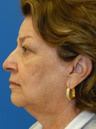face_lift_3-before