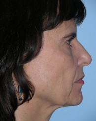 facelift_6a_before
