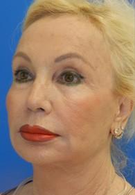 naples-woman-facelift-before-1