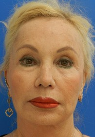 naples-woman-facelift-before-2