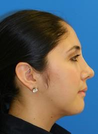 rhinoplasty-after
