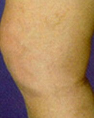 sclerotherapy_a1