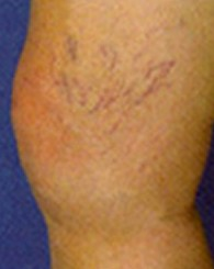 sclerotherapy_b1
