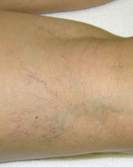 sclerotherapy_b2