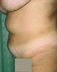 tummy3_bfr