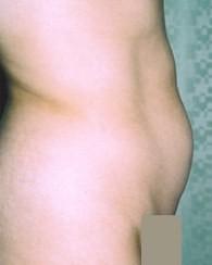 tummy5_bfr