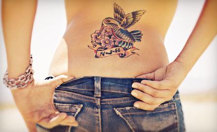 Advancements in laser technology laser tattoo removal for New tattoo removal technology