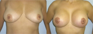 breast lift ba