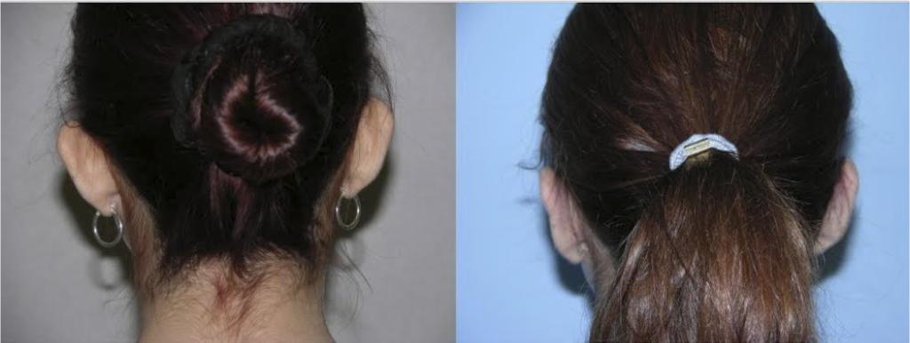 otoplasty back