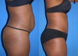 Belly Fat2