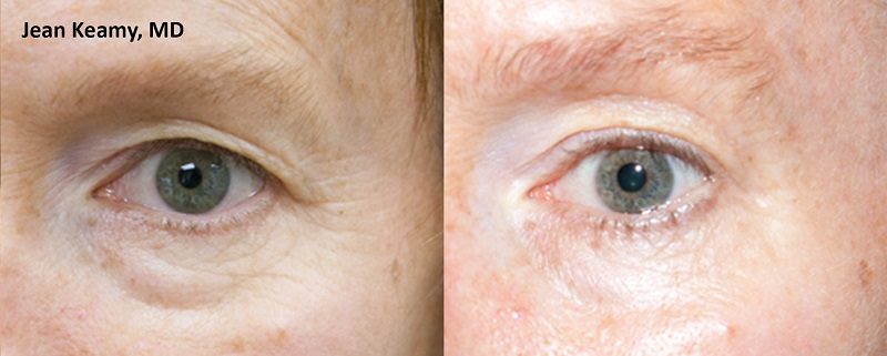 ThermiSmooth - JK male eyes before and after
