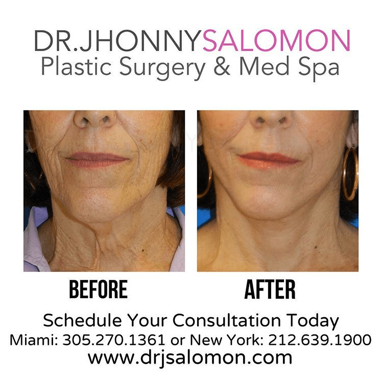 Dr-Salomon-Before-and-6-Weeks-After-Neck-and-Facelift