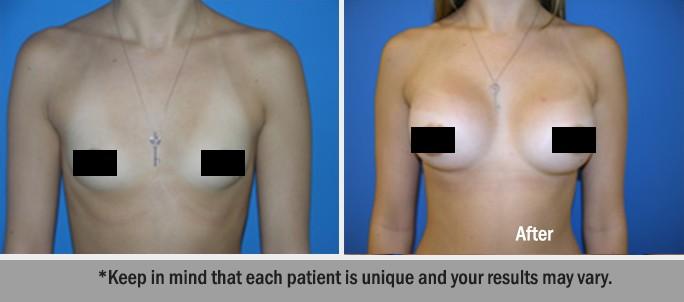 Silicone-Implants-1