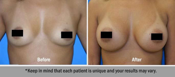 Silicone-Implants-6
