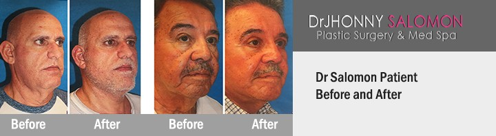 before-after-FaceLift5