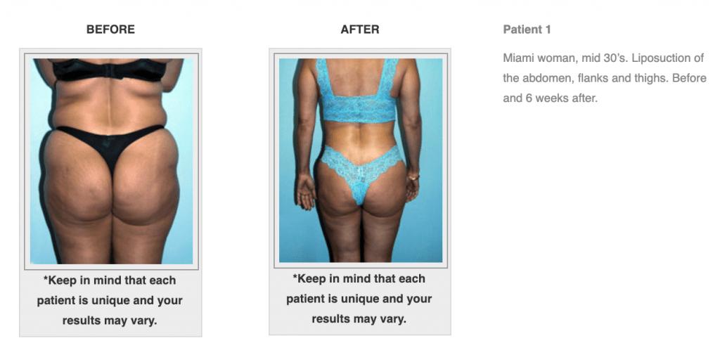 Dr-Salomon-Liposuction-Before-After-Image-1-1024x498
