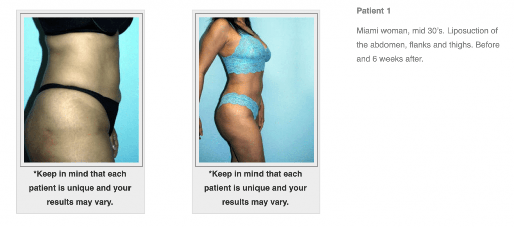 Dr-Salomon-Liposuction-Before-After-Image-2-1024x454