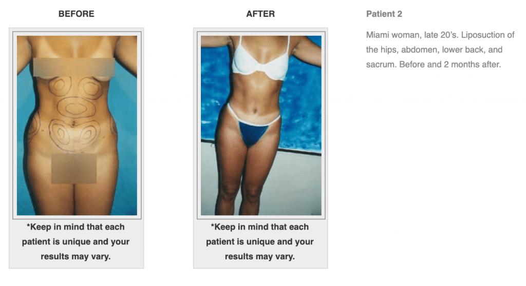 Dr-Salomon-Liposuction-Before-After-Image-3-1024x558