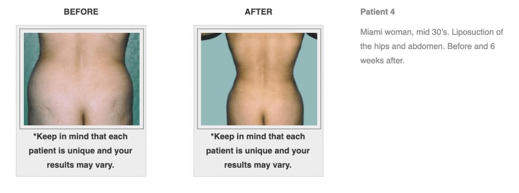 Dr-Salomon-Liposuction-Before-After-Image-6-1024x382