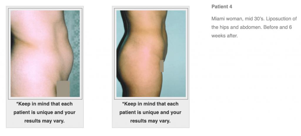 Dr-Salomon-Liposuction-Before-After-Image-7-1024x463